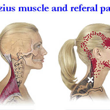 Tension Headaches- Massage Is The Remedy