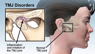 TMJ- TMD? About Temporomandibular Joint Disorders
