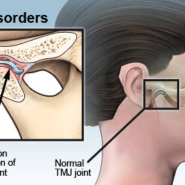 TMJ- TMD? About Temporomandibular Joint Disorders