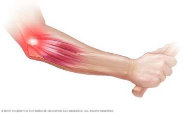 Elbow Pain-  What Is It? Tennis and Golfer's Elbow