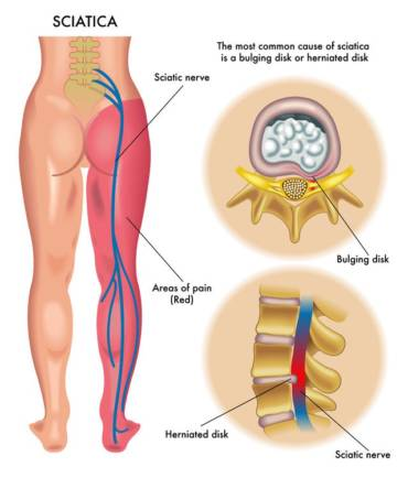 Pain In The Lower Back/Glutes and or HamstringsTrue Sciatica and False Sciatica aka The Piriformis Syndrome