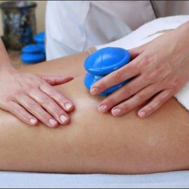 Cupping For Scar and Cellulite Reduction