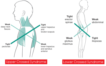 Maintaining Proper Posture- Forward Head Can Give You Tension Headaches. Upper-Crossed Syndrome